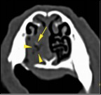 Transversal CT images of the patient's nasal cavity.